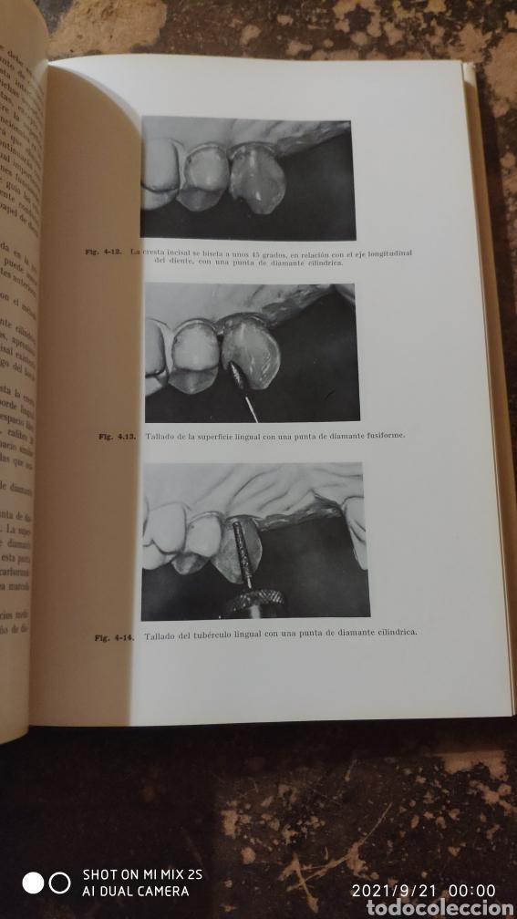 Libros de segunda mano: PRÓTESIS DE CORONAS Y PUENTES (GEORGE E. MYERS) (ED. LABOR) - Foto 3 - 288584778