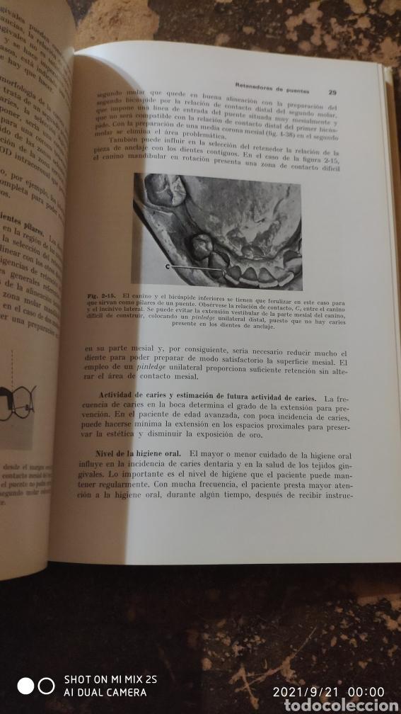 Libros de segunda mano: PRÓTESIS DE CORONAS Y PUENTES (GEORGE E. MYERS) (ED. LABOR) - Foto 4 - 288584778