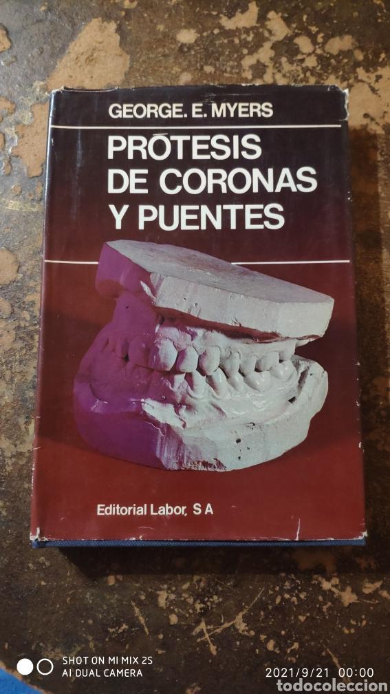 PRÓTESIS DE CORONAS Y PUENTES (GEORGE E. MYERS) (ED. LABOR) (Libros de Segunda Mano - Ciencias, Manuales y Oficios - Medicina, Farmacia y Salud)