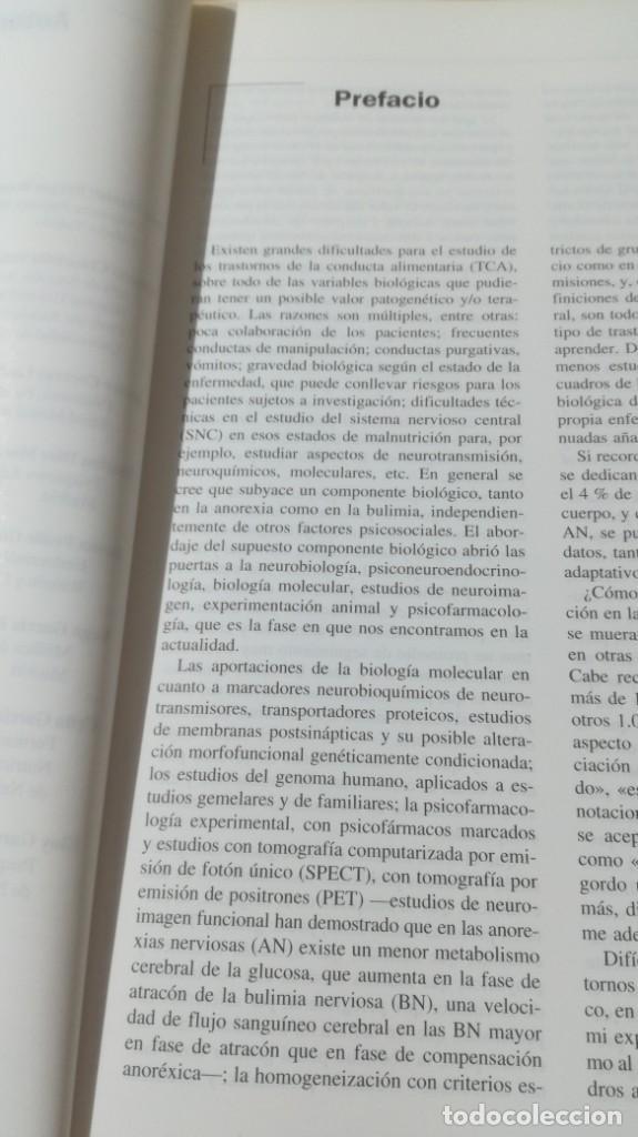 Libros de segunda mano: TRASTORNOS CONDUCTA ALIMENTARIA - ANOREXIA BULIMIA OBESIDAD ATRACONES MASSONPSIQUIATRIAK505 - Foto 7 - 195385967