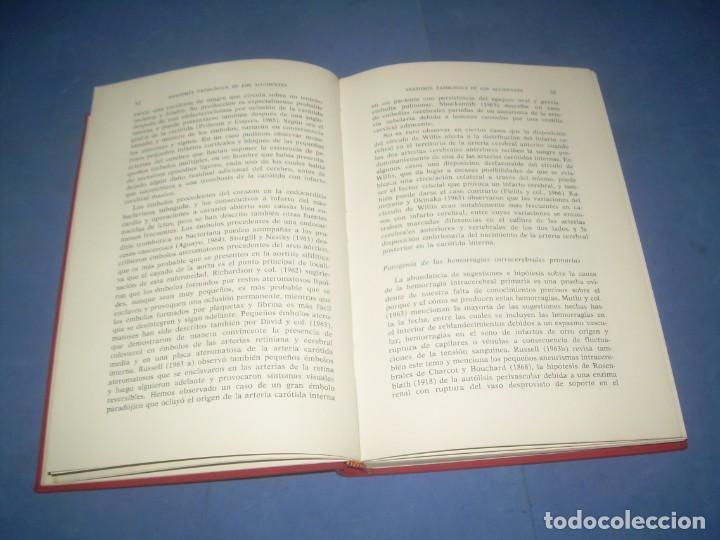 Libros: DIAGNÓSTICO Y TRATAMIENTO DE AFECCIONES CEREBROVASCULARES. JOHN MARSHALL. ELICIEN-JIMS 1970 LIBRO ME - Foto 3 - 293676203