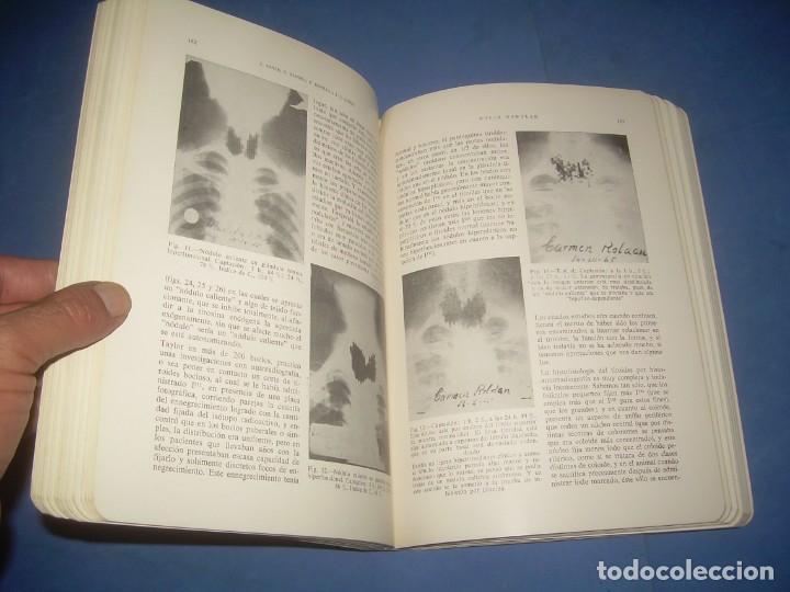 Libros: FIBROSIS Y ENFISEMA PULMONAR-TIROIDES. SOCIEDAD MEDICINA INTERNA. PONENCIAS VII CONGRESO. PAMPLONA 1 - Foto 3 - 293676503