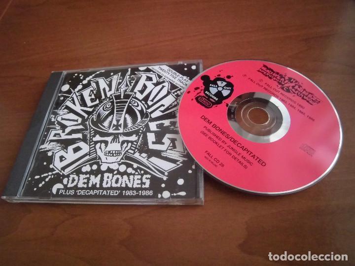 Broken Bones- Dem bones 83-86
