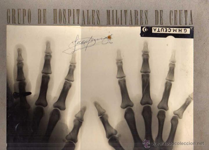 FOTOGRAFÍA RADIOGRAFIA MANOS. 24 X32 CM GRUPO DE HOSPITALES MILITARES DE CEUTA. GUERRA CIVIL (Postales - España - Ceuta Antigua (hasta 1939))