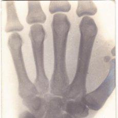 Postales: CORRESPONDENCIA ENTRE DOCTORES - INAUGURACION MAQUINA RAYOS X - 1916. Lote 107086471